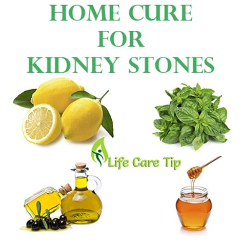 home remedies for passing kidney stones quickly