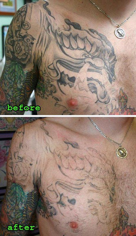 remove tattoos at home 60 best images about laserless removal effective