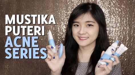 Harga Mustika Puteri Acne Series review cara mengatasi jerawat dengan mustika puteri acne