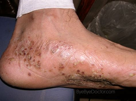 dyshidrotic eczema pictures causes home remedies