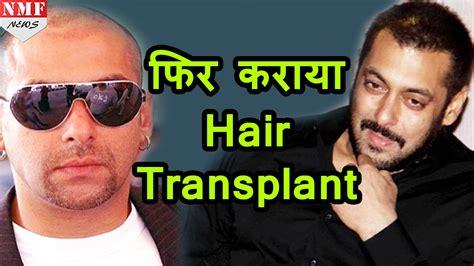 salman khan hair transplant cost salman khan hair transplant hair transplant info
