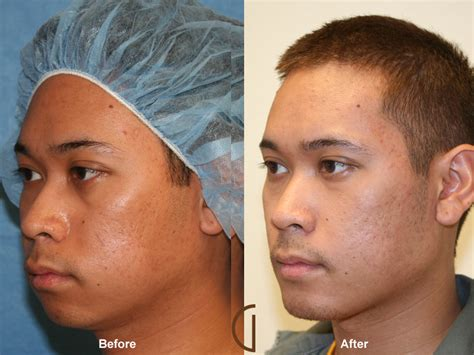 fat grafting plastic surgery before after fat grafting to face 24 orange county fat