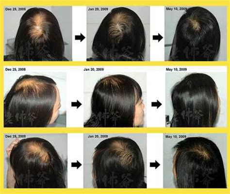 treating hair fall women over 50 treating hair fall women over 50 over 50 short hair