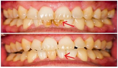 how to remove plaque from s teeth naturally how to naturally remove plaque and tartar from teeth the science of