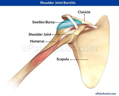 shoulder images shoulder joint bursitis causes symptoms treatment