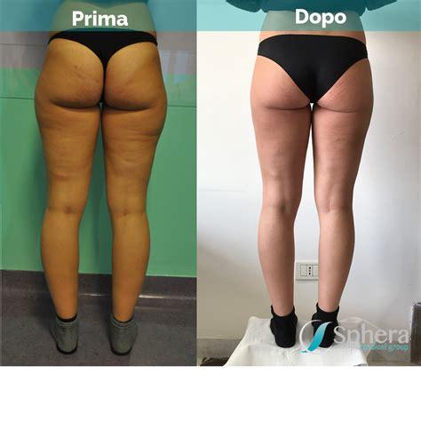 liposuzione interno coscia liposuzione frosinone tivoli e roma chirurgia plastica