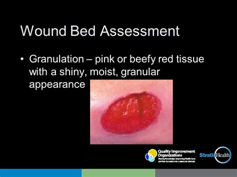 wound bed description wound bed description 28 images provide local wound