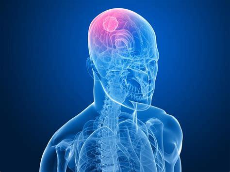 mal di testa tumore cervello tumore al cervello cause e sintomi ecco quando il mal di