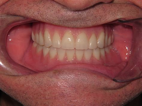comfortable dentures dentures held in by implants in kidron oh raber dental