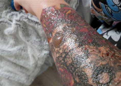 tattoo removal infection glasgow laser removal badly