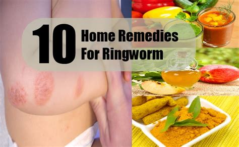 10 home remedies for ringworm in humans