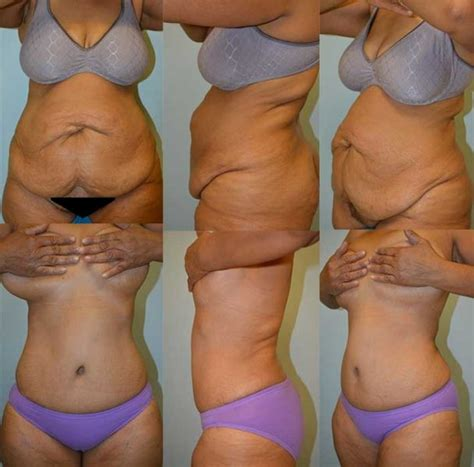 plastic surgery during c section tummy tuck before and after nyc plastic surgery photos