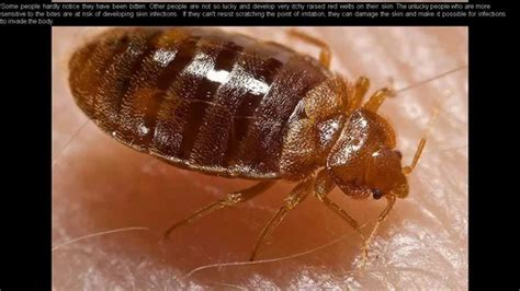 youtube bed bugs bed bug 911 elimination guide or control guide youtube