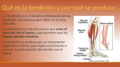 que es la diot 2016 tendinitis mariavillalbaquiromasaje