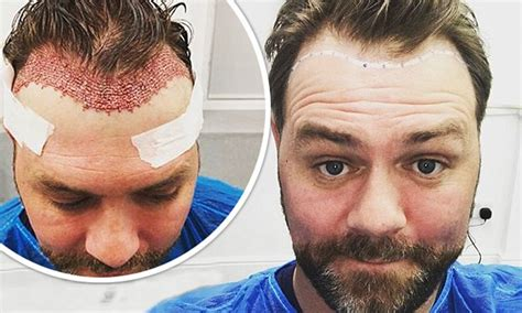 hair plantation hair style for woman brian mcfadden unveils the results of hair transplant