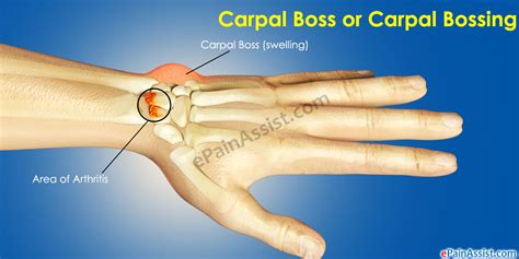 test tunnel carpale carpal causes symptoms treatment of carpal bossing