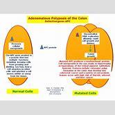 familial-adenomatous-polyposis-retina