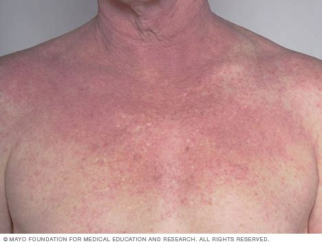 atopic dermatitis on the chest mayo clinic