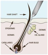 does laser hair removal hurt more than a tattoo electrolysis vs laser hair removal laser by sia