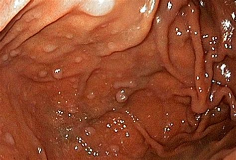 Polyps Images
