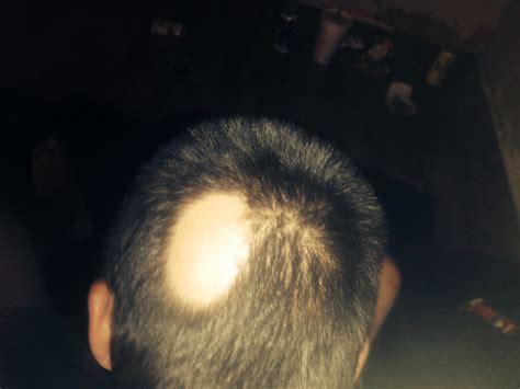 how to cut alepecia areata hair i got a hair cut and i noticed a bald spot new hair