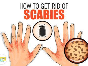 How To Clean Your House Of Scabies by How To Make Refreshing Spicy Tea Quickly Fab How