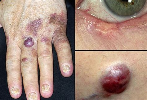 types of cancer pictures pictures of skin diseases and problems less common skin cancers