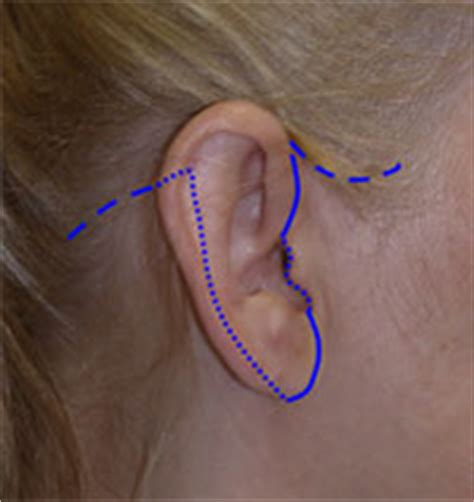 rhytidectomy incision facelift incisions and scars richmond va facelift scars