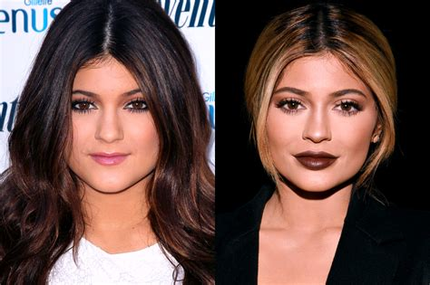 celebs who havent had neck lifts 13 of the most drastic celebrity plastic surgeries