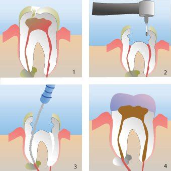 comfort dental root canal cost root canal cost pain recovery