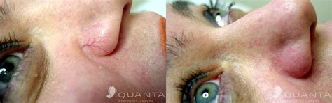 skintelligence skin and aesthetics clinic
