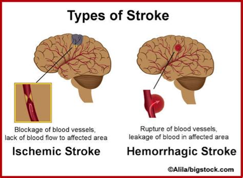 can a a stroke stroke prevention with healthy diet and lifestyle less likely to stroke