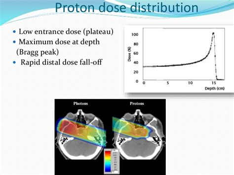 Proton Beam by Proton Beam Therapy