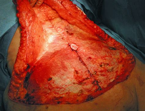 abdominoplasty archives page 3 of 4