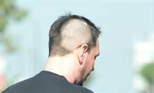 Dj Am Is On The Market Again by Dj Am Reveals His Shorn And Burns After Surviving