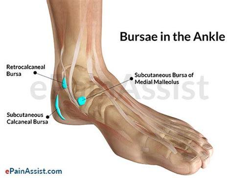 Interior Ankle Sprain by Ankle Joint Bursitis Causes Symptoms Treatment