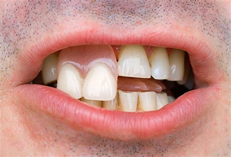 protesi mobile parziale cosa fa il dentista guida illustrata ai dispositivi