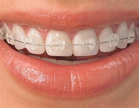 apparecchi dentali interni denti storti cause e rimedi roba da donne