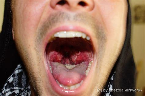 mandel op wann antibiotika mandeln