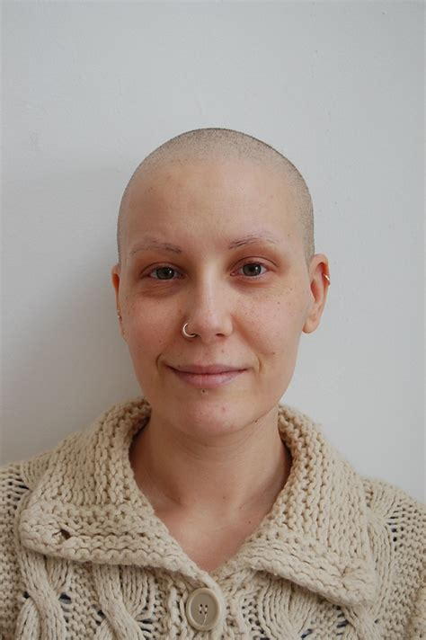 short chemo hair image gallery hair after chemo