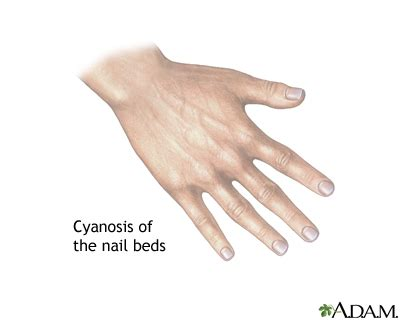 nail bed definition cyanosis of the nail bed medlineplus medical encyclopedia