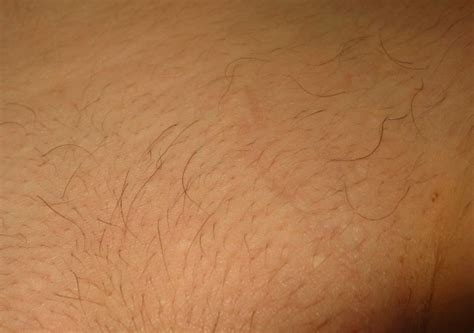 male pubic hair removal photos male pubic hair laser removal techniques for chest hair