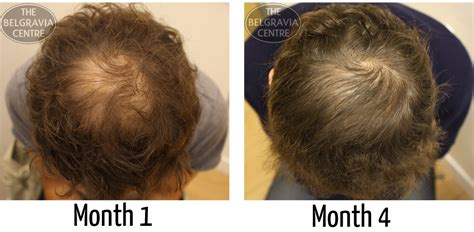 best haircut for thinning hair at the crown hairstyles for men with thinning hair on crown