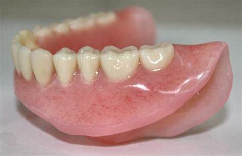 dentures ottawa top denture clinic smile denture