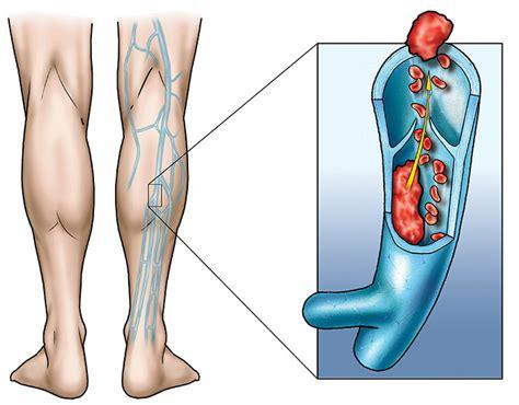 rottura vasi sanguigni la trombosi venosa profonda federazione ipasvi