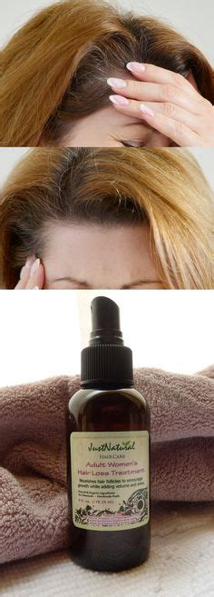 hair loss treatment reviews 1000 images about lotions and soaps on pinterest