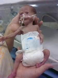 Precious preemie babies low birth weight baby these precious humans