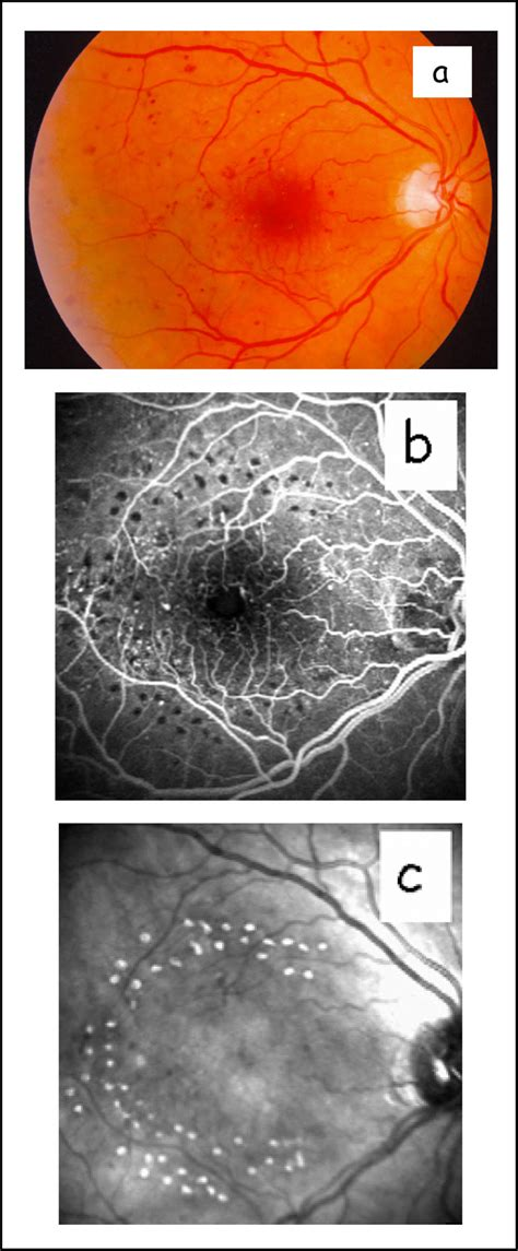 grid pattern laser photocoagulation detection of macular photocoagulation scars with confocal