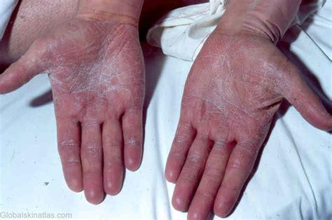 syphilis rash on hands hand syphilis