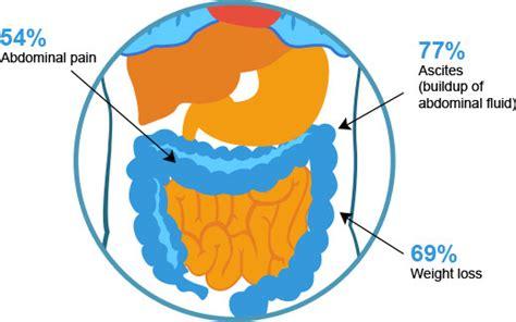common mesothelioma symptoms